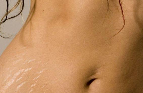 Las estrías en el cuerpo de una mujer