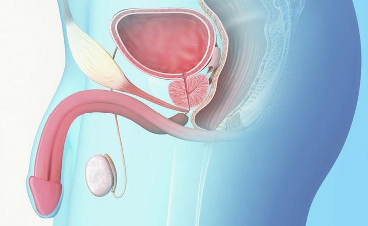 Eyaculación inducida por la próstata