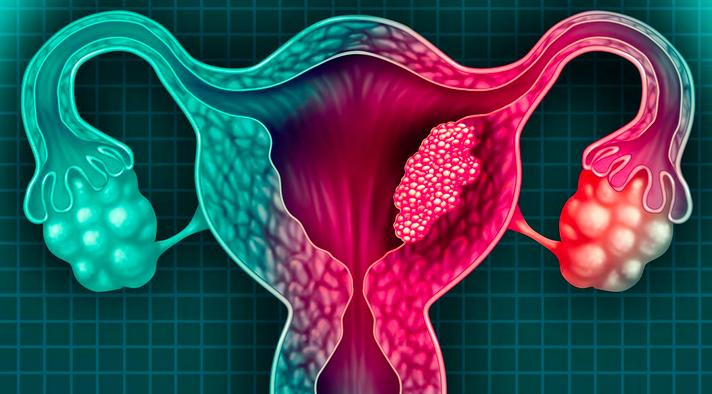 El cáncer de cuello uterino